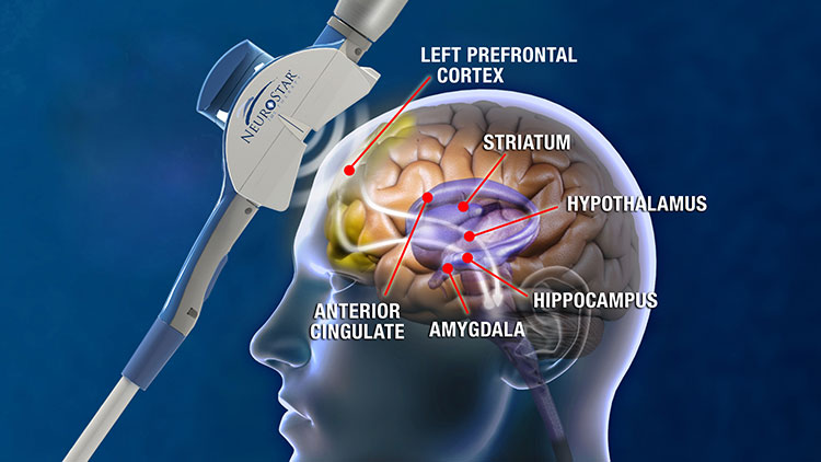 Magnetic Brain Stimulation May Trump Drugs For Severe Depression