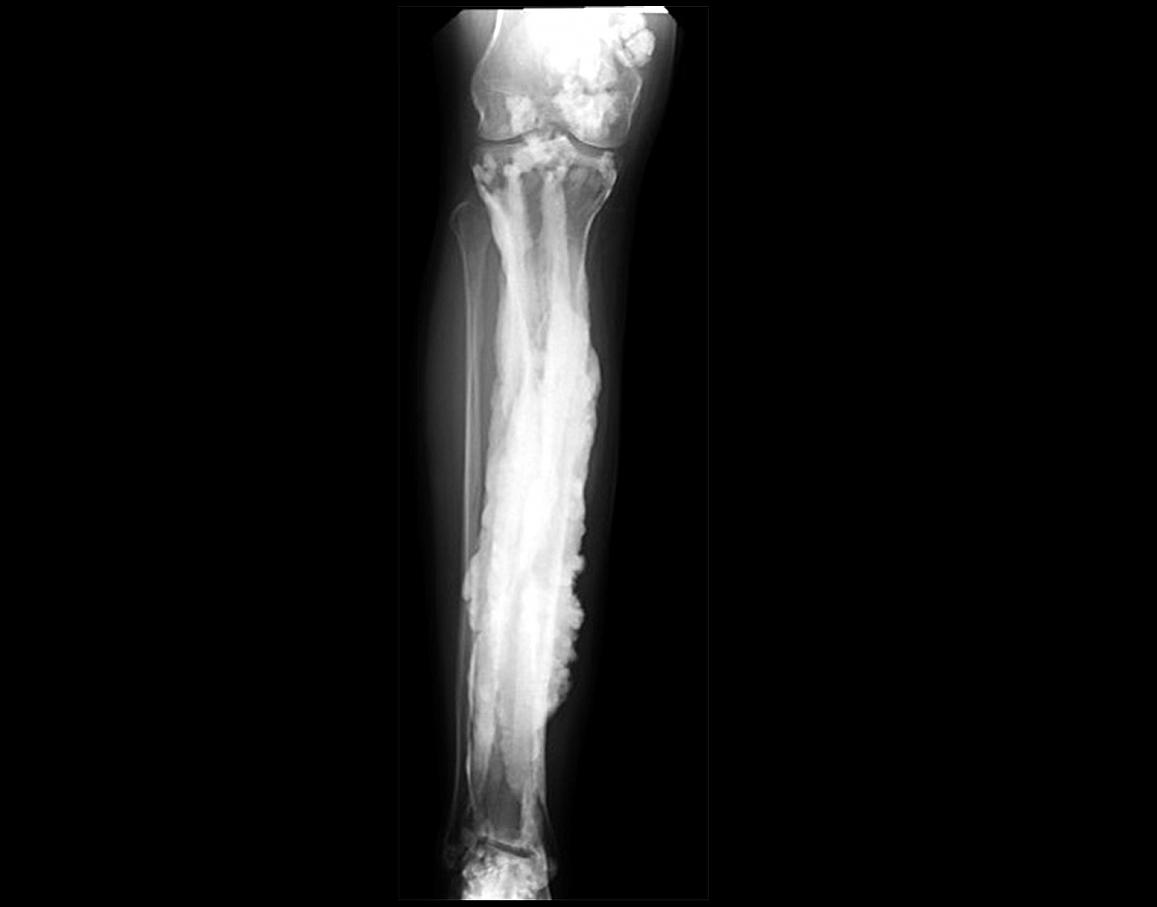 Six rare bone disorders you probably haven't heard of